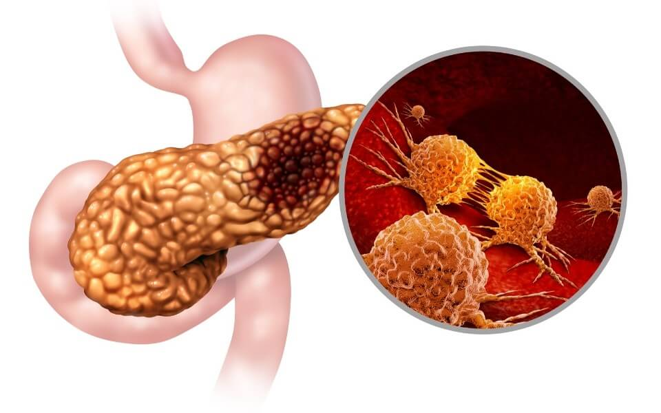 acute pancreatitis treatment johannesburg - Pancreatitis: Symptoms, Triggers, Diagnosis & Treatment