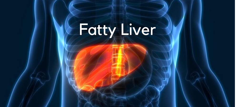 Fatty Liver: Causes, Symptoms, Diagnosis, and Treatment