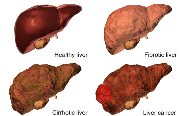 cirrhosis liver - Cirrhosis: Symptoms, Causes, Stages, Diagnosis and Treatment