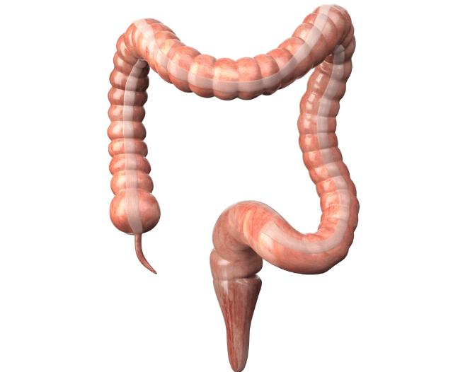 colonoscopy checkup procedure - When You Would Need a Routine Colonoscopy