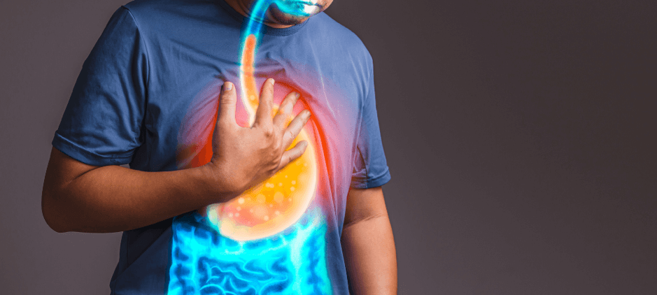 symptoms gastro oesophageal reflux - Gastroenterology Blog for South Africans