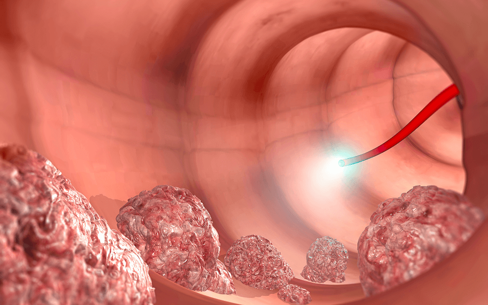 colorectal cancer treatment - Colorectal Cancer: What You Need to Know