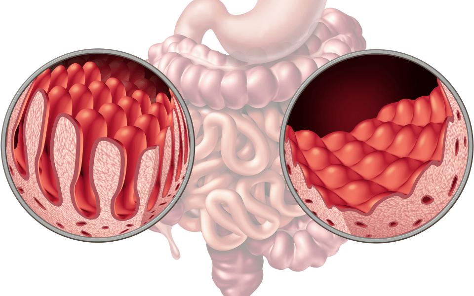 what is coeliac disease - Coeliac Disease: Causes, Symptoms and Side Effects
